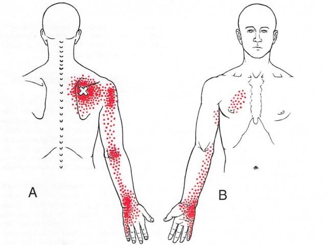 棘下筋からの関連痛