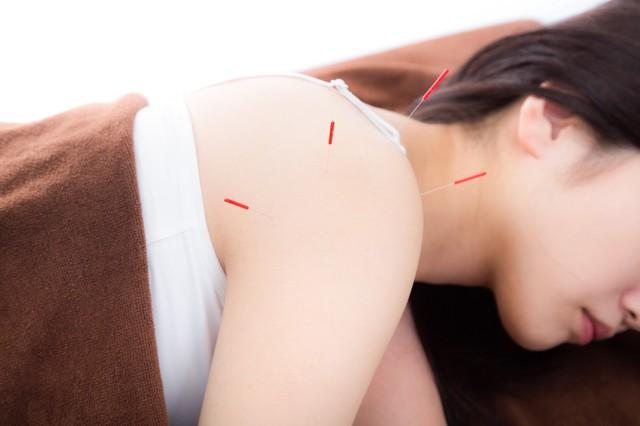 肩の鍼治療