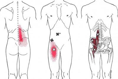 大腰筋からの関連痛