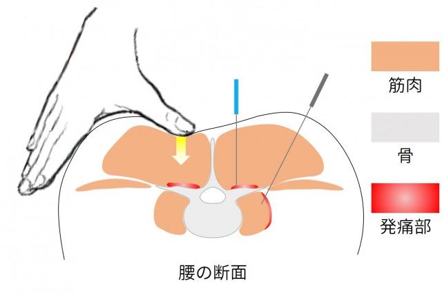 鍼・マッサージの刺激の届き方