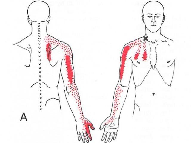 斜角筋からの関連痛
