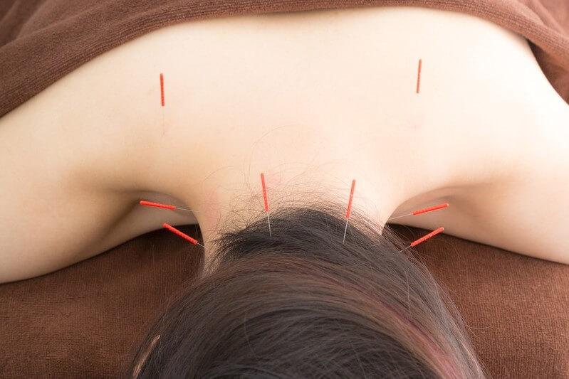 肩こりに対する鍼治療